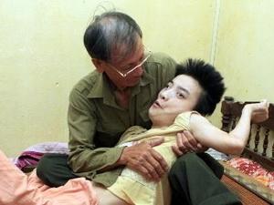 Loạt ảnh kinh hoàng về di chứng chất độc da cam Mỹ sử dụng trong chiến tranh Việt Nam với người dân